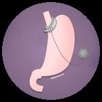 Бандажирование желудка (кольцо на желудок)