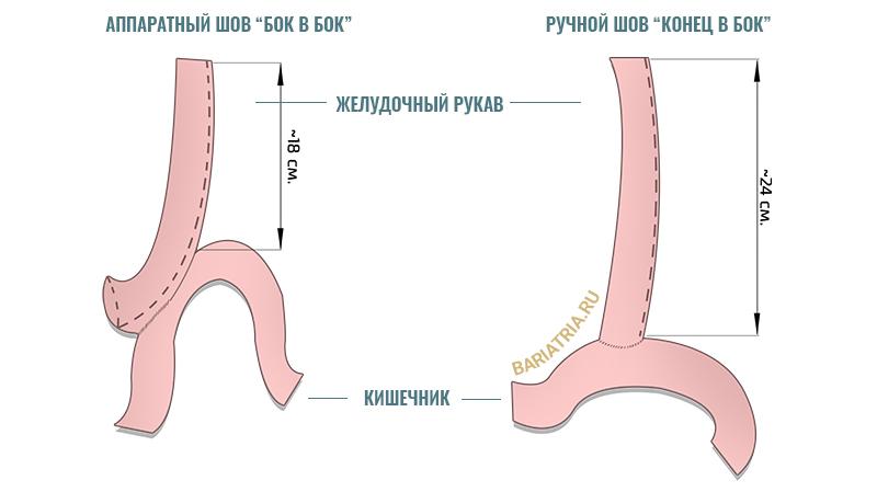 Желудочно кишечный анастомоз при мини шунтировании желудка