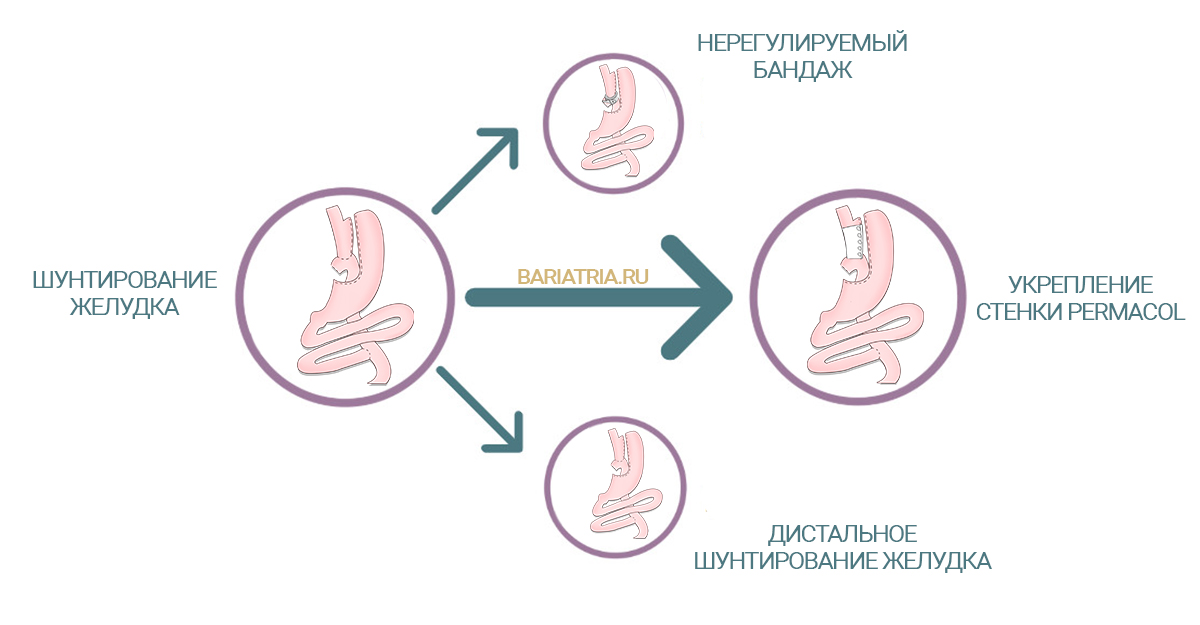 Операция после шунтирования желудка