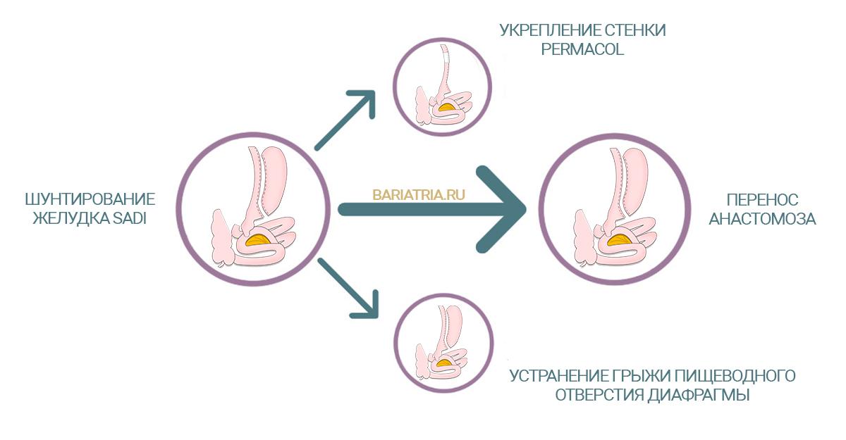 Операции после билиопанкреатического шунтирования