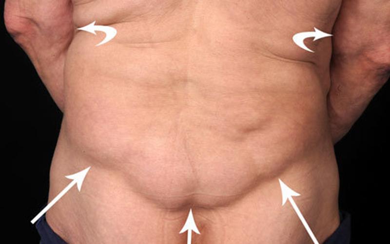 симптомы ожирения