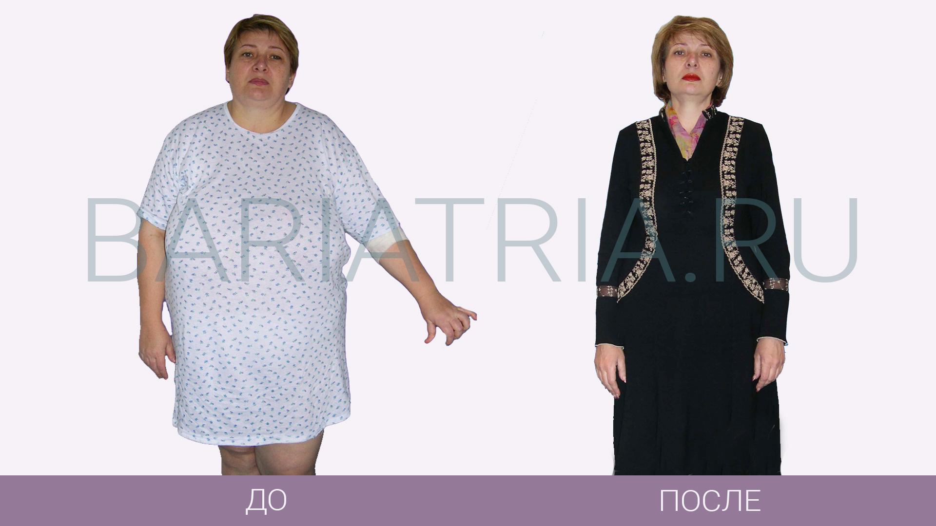 ФотоОтзывы похудение
