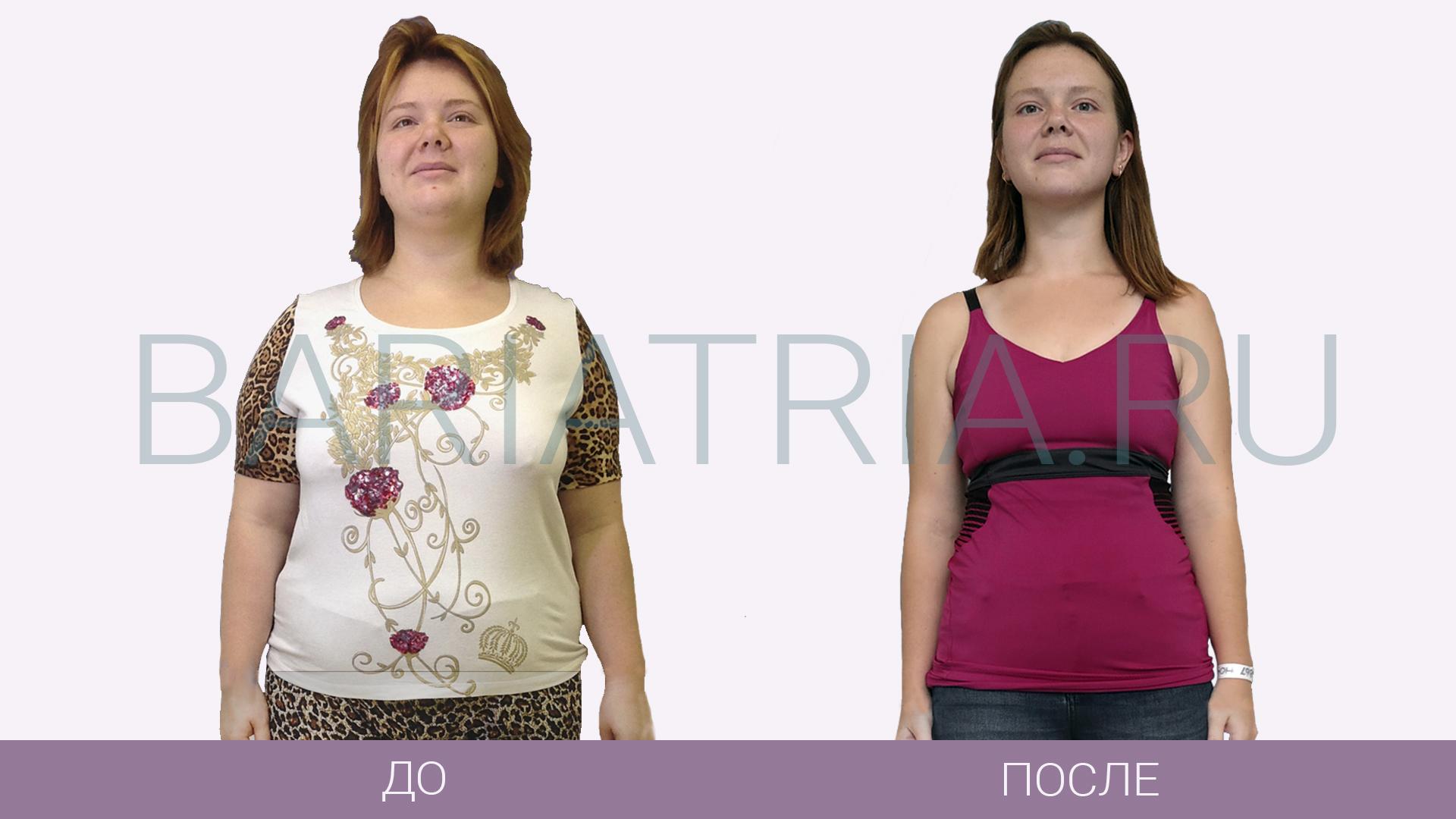 Фото результаты худеющих после бандажирования желудка