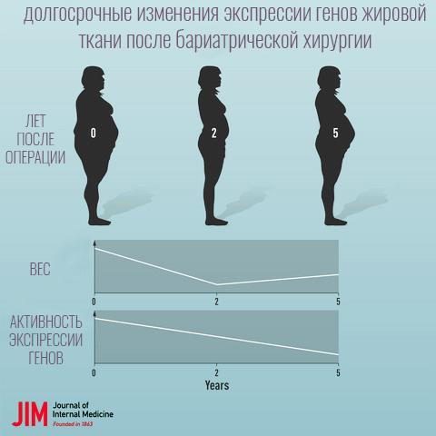Бариатрическая операция изменяет экспрессию генов жировой ткани