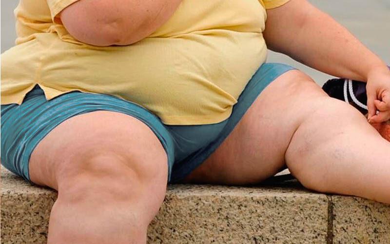 Роль ожирения в поздних осложнениях диабета