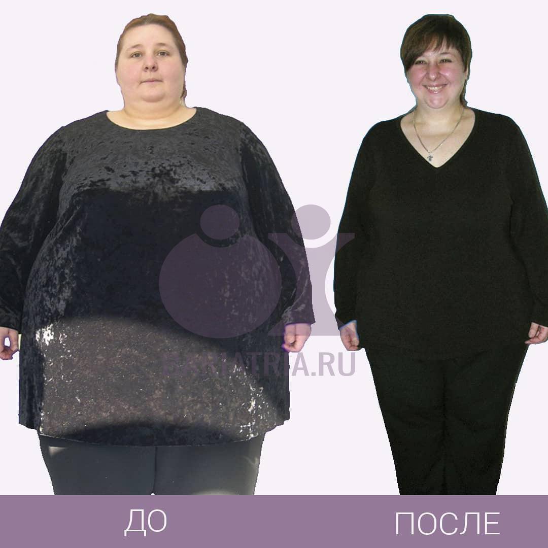 Фото до и после операции САДИ