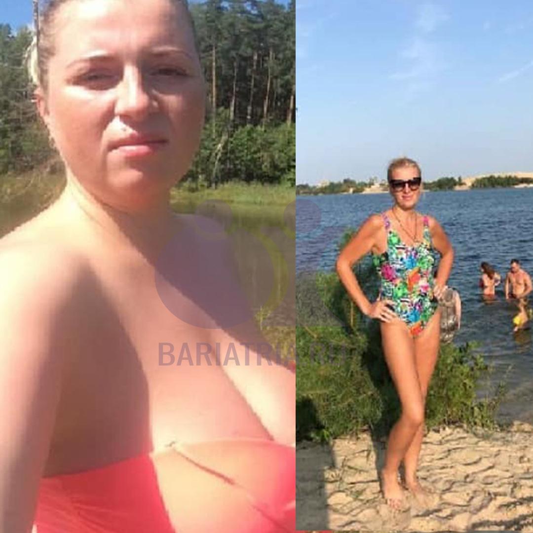 похудение после бандажирования желудка
