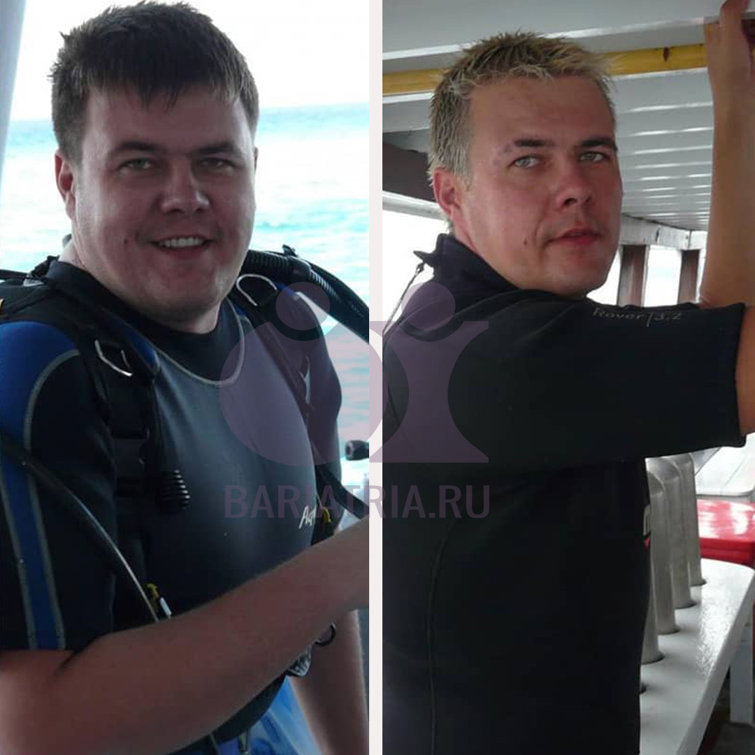 до и после бариатрия