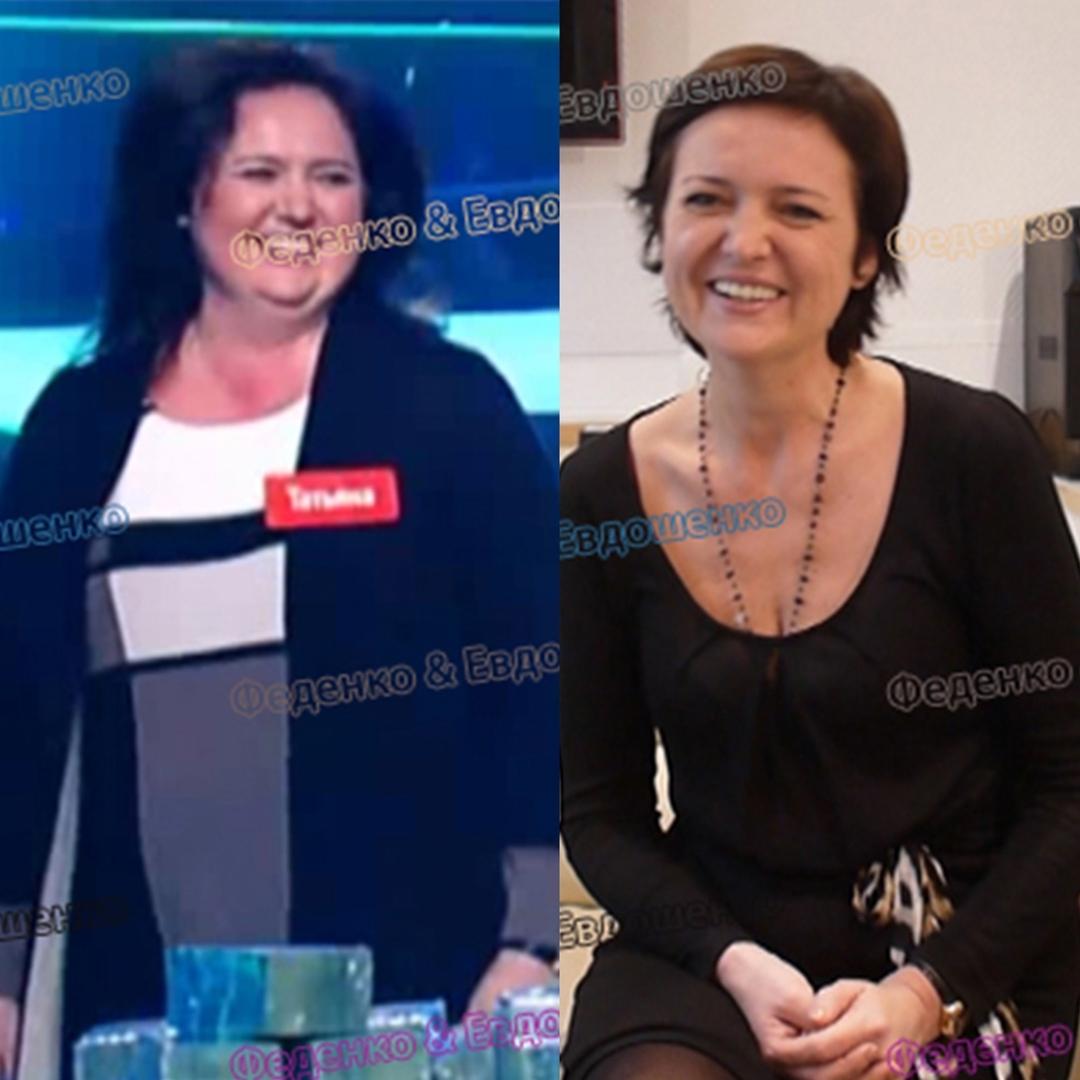 до и после бариатрическая хирургия