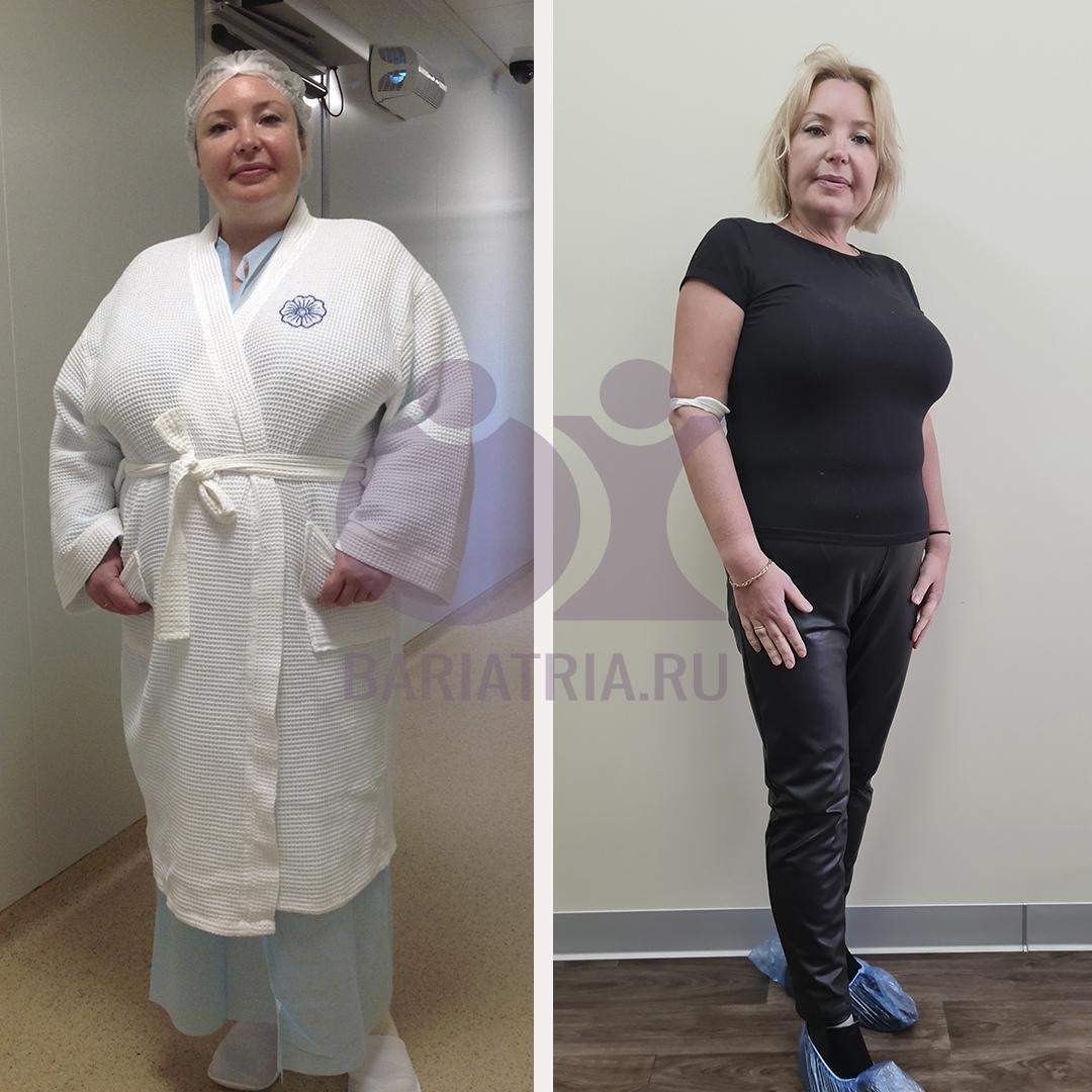 похудение после шунтирования желудка