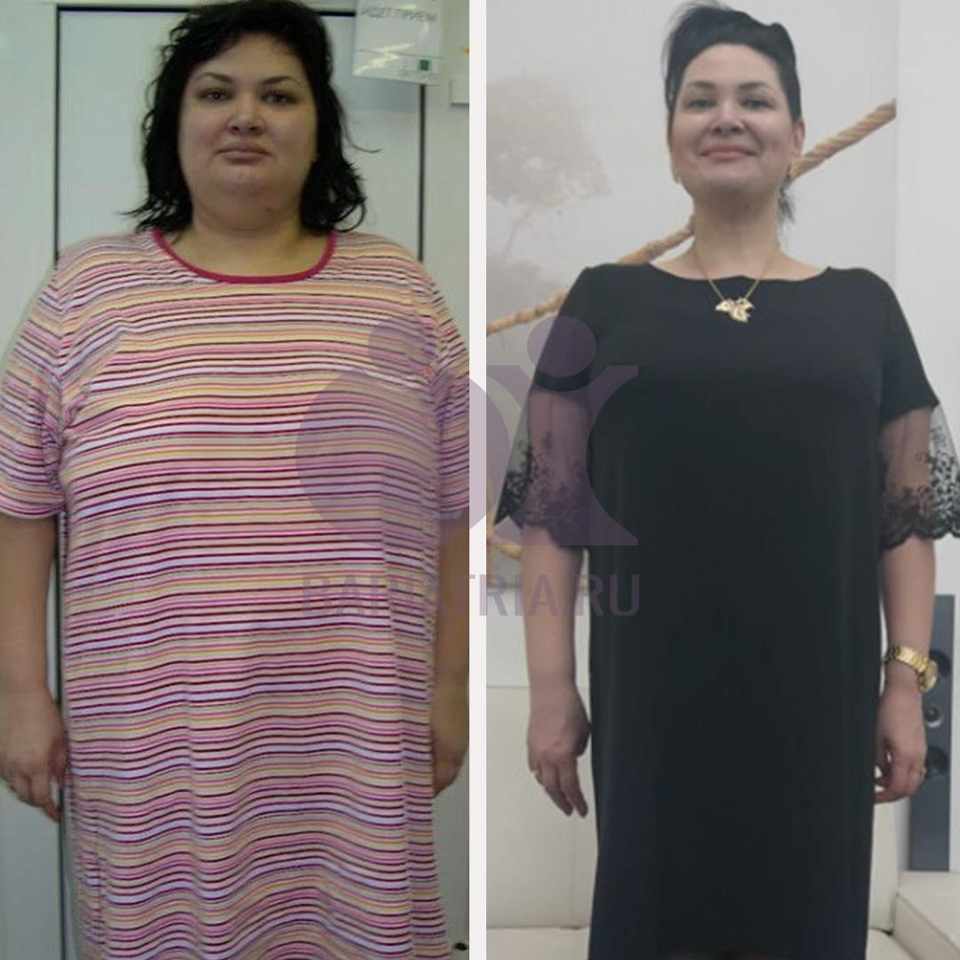 результат до и после похудение