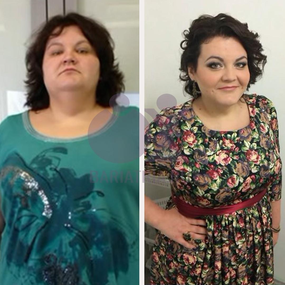 до и после похудение
